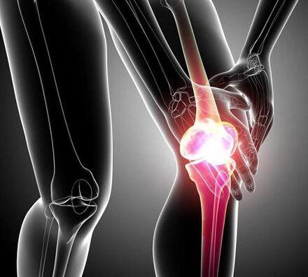 Artroza 1 2 grade a articulației șoldului - addamsscrub.ro